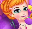 Trị thương cho Anna