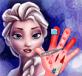 Elsa chữa thương 2