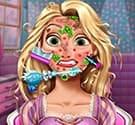 Trị thương da mặt
